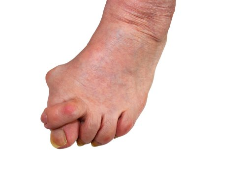 Bunion Reconstructive Surgery in Sugar Land
